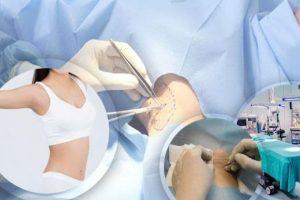 Điều trị chứng bệnh tăng tiết mồ hôi bằng cách cắt tuyến mồ hôi